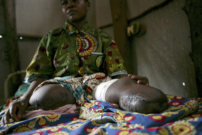 Landmine Victim in Democratic Republic of the Congo