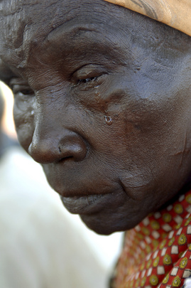 Woman Leprosy Patient in Sudan