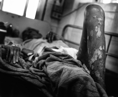 Patient Rests in AIDS Hospice, Thailand