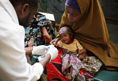 Malnourished Child Receives Medical Assistance in Mogadishu, Somalia