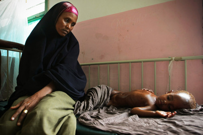 Malnourished Child Awaits Treatment at Mogadishu Hospital