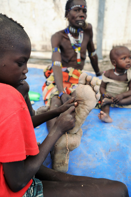 South Sudanese Displaced by Violence Recover at UN Medical Base