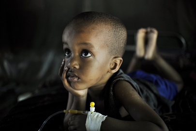 Young Malaria Patient Recovers at Health Clinic in Mogadishu