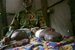 Landmine Victim in Democratic Republic of the Congo 7.4954367