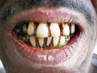 Man with Periodontitis in Dhaka Housing Slum 9.953163