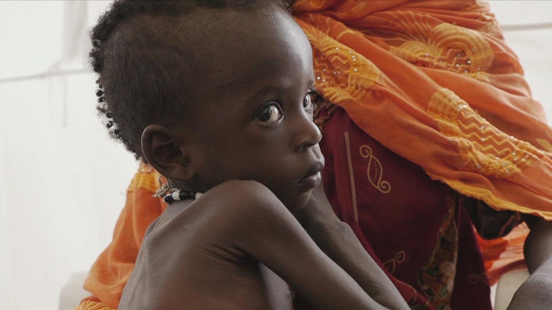 UNICEF / CHILDREN HUNGER