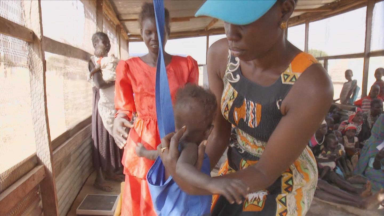 SOUTH SUDAN / MALNUTRITION RESPONSE