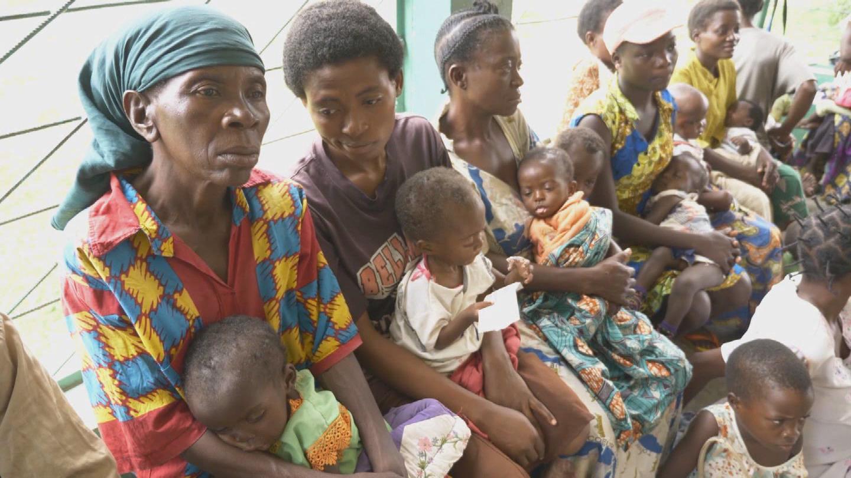 UNICEF  DRC CHILDREN MALNUTRITION